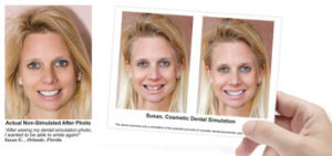 Complimentary Cosmetic Smile Imaging