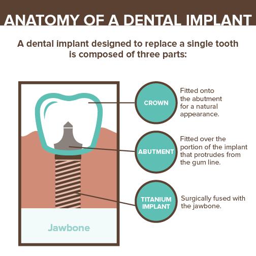 Social Graphic 15014 - Implants2
