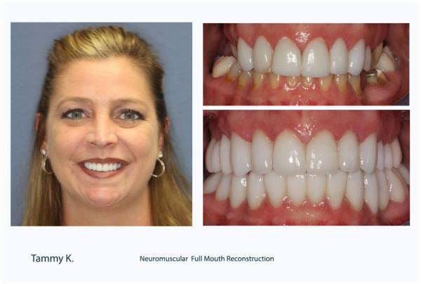 Palm jBeach Gardens dentist neuromuscular dentistry