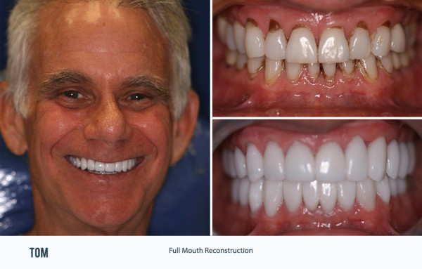 Full Mouth Rehabilitation Palm Beach Gardens Tom