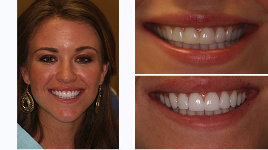 See Ashley L.'s makeover in Palm Beach Gardens with gum recontouring