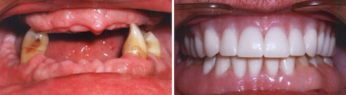 Carl's teeth before and after his smile makeover Palm Beach Gardens