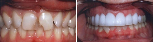 Champa's smile before and after his makeover Palm Beach Gardens