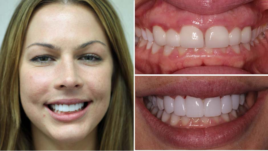 Colleen's smile makeover in Palm Beach Gardens included Zirconia Crowns