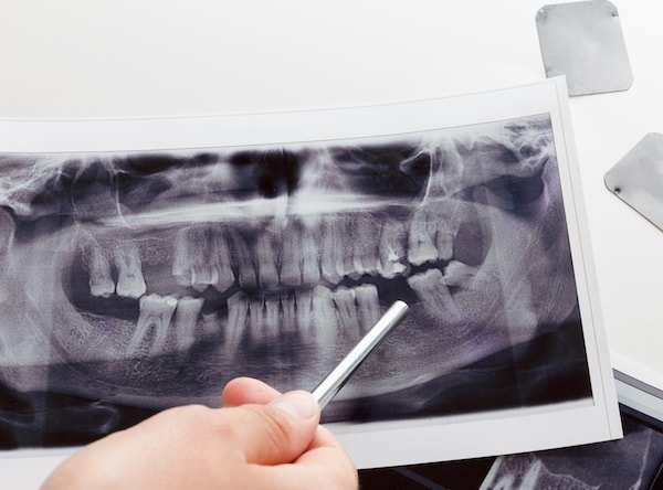 X-ray showing someone who needs Dental Implants Palm Beach Gardens