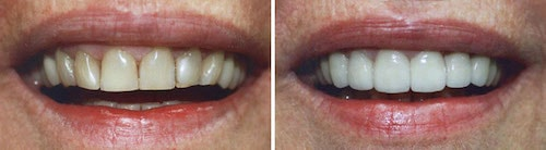 Eva's smile before and after her makeover Palm Beach Gardens