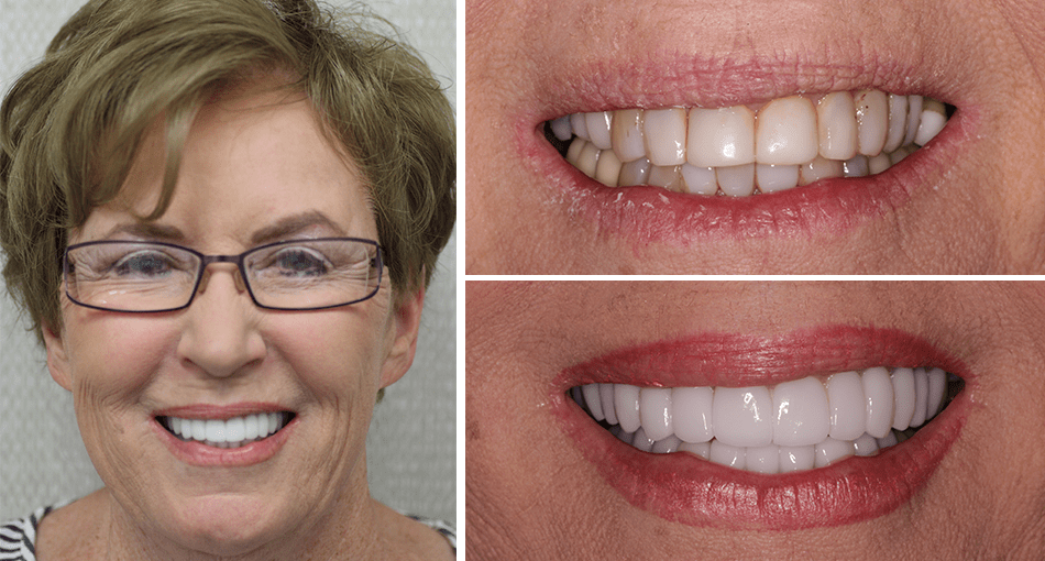 Gerry had a full cosmetic makeover in Palm Beach Gardens