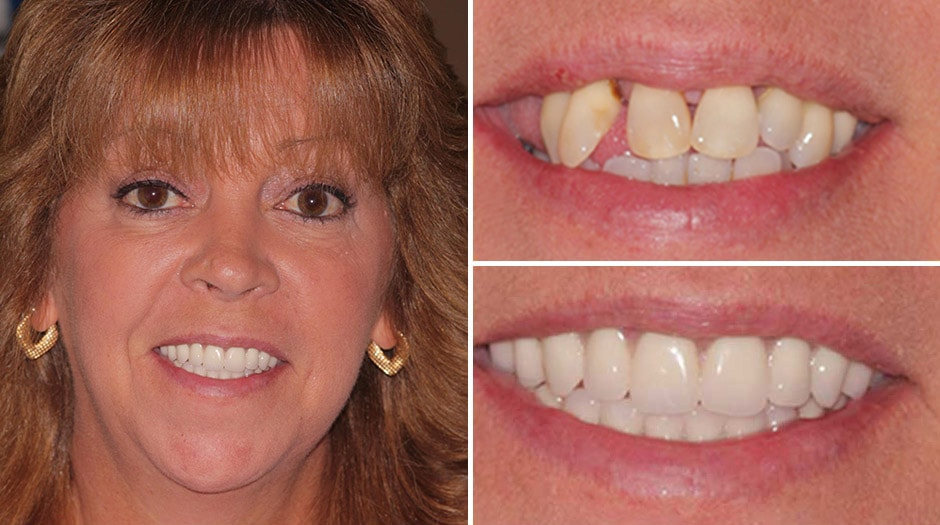Helen enjoyed a makeover in Palm Beach Gardens from Dr. Rudnick