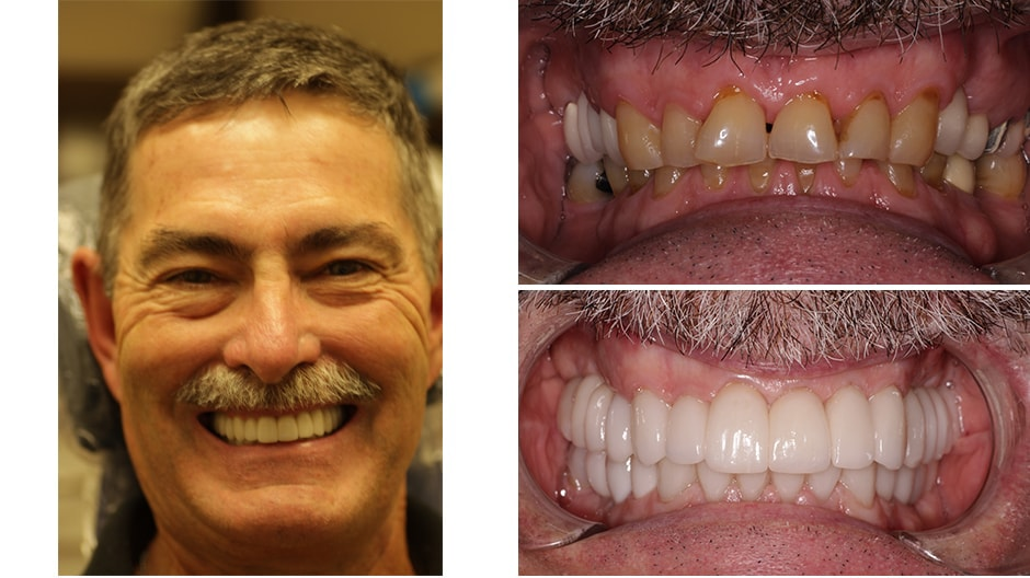 See Howard's smile makeover Palm Beach Gardens