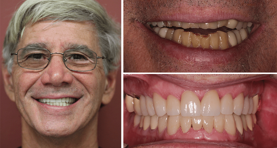 Jack's makeover in Palm Beach Gardens including 20 crowns