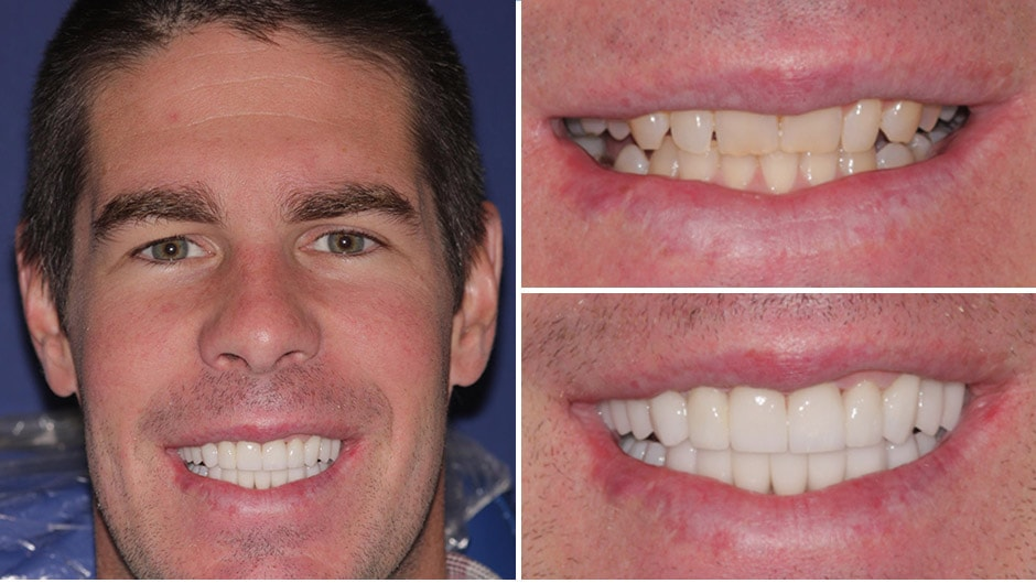 Jack had full mouth reconstruction and a makeover in Palm Beach Gardens