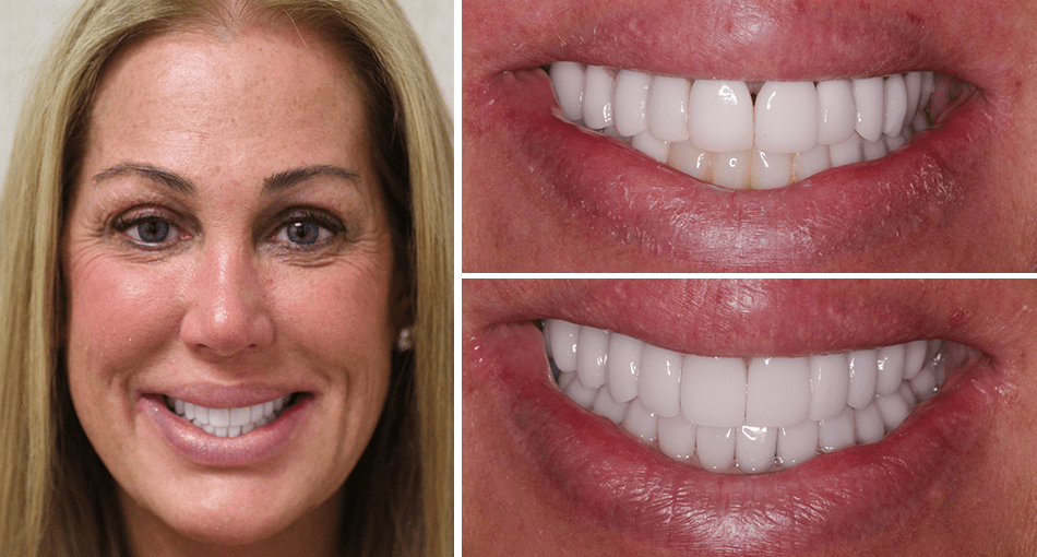 Janet had a Full Mouth Cosmetic Neuromuscular Makeover in Palm Beach Gardens