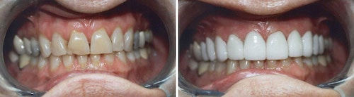 Janet's teeth before and after her smile makeover Palm Beach Gardens