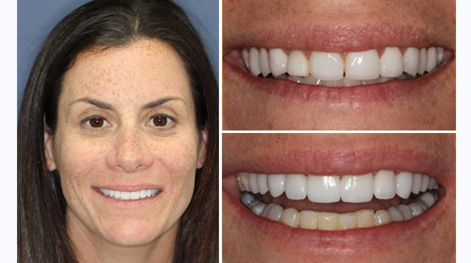 Check out Jennifer H. and her smile makeover Palm Beach Gardens