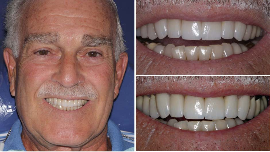 John had a nice smile makeover in Palm Beach Gardens from Dr. Andrew Rudnick