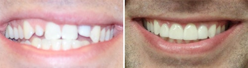 Justin's teeth before and after his smile makeover Palm Beach Gardens