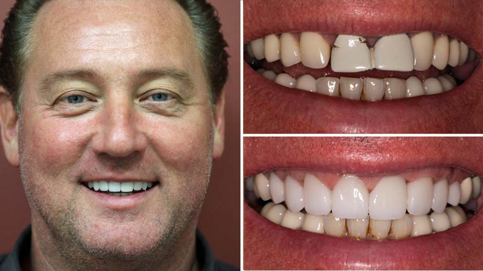 Kurt's makeover Palm Beach Gardens included eMax crowns