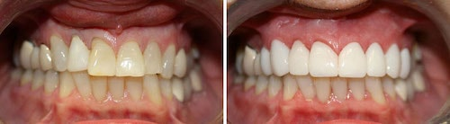 Linda's teeth before and after her smile makeover Palm Beach Gardens