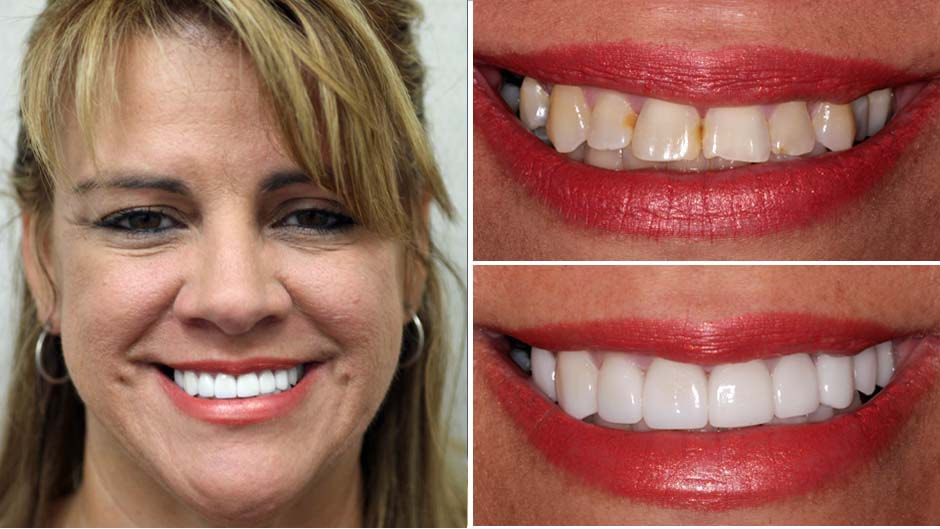 Maribel enjoyed a makeover Palm Beach Gardens from Dr. Rudnick