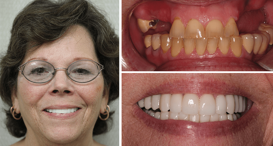 Linda's makeover in Palm Beach Gardens included full mouth construction and implants