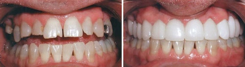 Michael's teeth before and after his smile makeover Palm Beach Gardens