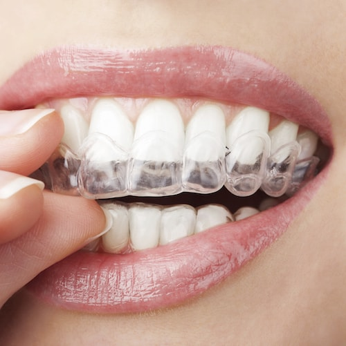 Palm Beach Gardens Cosmetic Dentistry includes clear aligners from Invisalign®