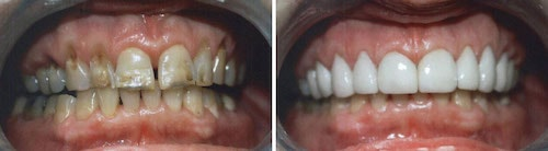 Rona's teeth before and after her smile makeover Palm Beach Gardens