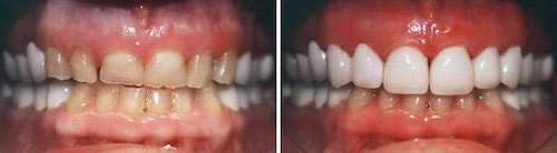Steve''s teeth before and after his makeover Palm Beach Gardens