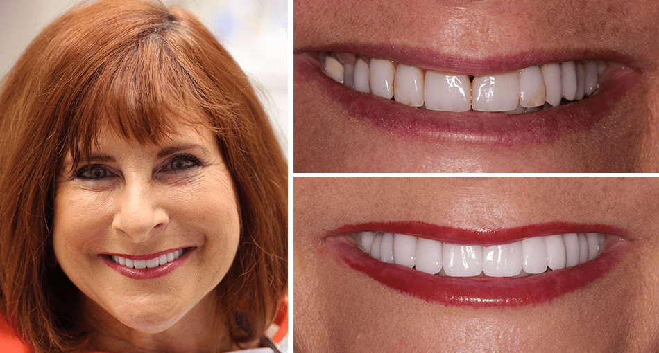 Syndie had a cosmetic smile makeover in Palm Beach Gardens