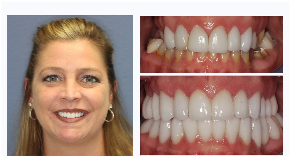 Tammy's Makeover Palm Beach Gardens included full mouth reconstruction