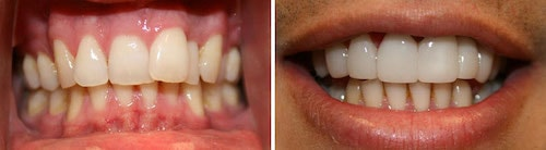 Tarek's teeth before and after his smile makeover Palm Beach Gardens