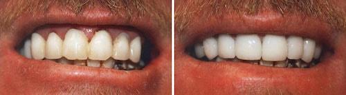 Tim's teeth smile makeover Palm Beach Gardens