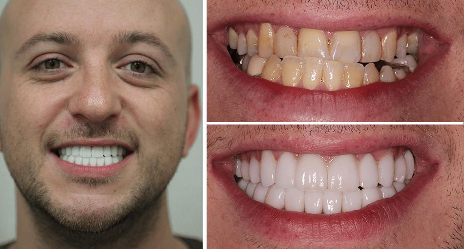 Makeover Palm Beach Gardens Rudnick Dentistry Our
