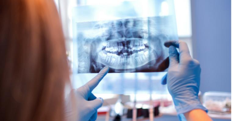 A dentist examining a dental x-ray