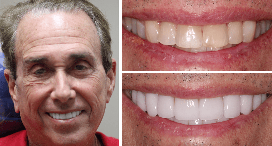 Smile makeover case of a Rudnick Dentistry patient.