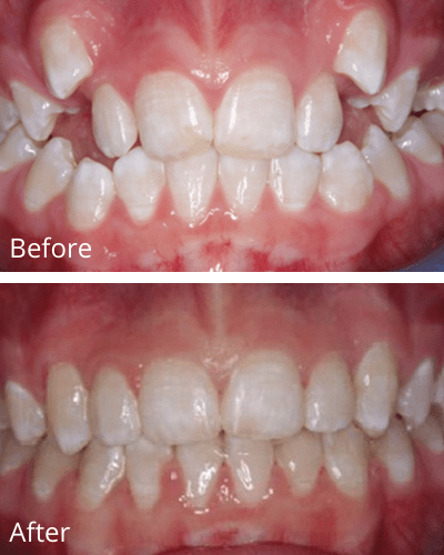 A crowding patient case before and after 119 days of Fastbraces®