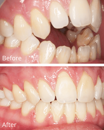 An open bite before and after 152 days of Fastbraces®