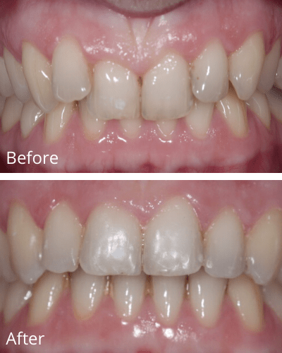 An overbite before and after 72 days of Fastbraces®Turbo