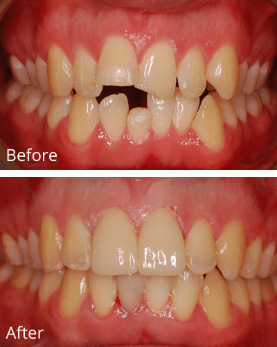 A spacing patient case before and after 120 days of Fastbraces®Turbo