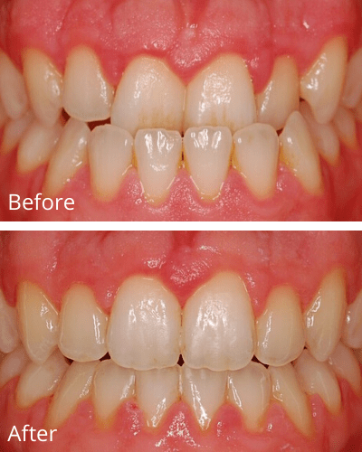 An underbite before and after 117 days of Fastbraces®Turbo